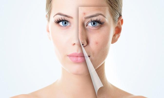 Peeling acné