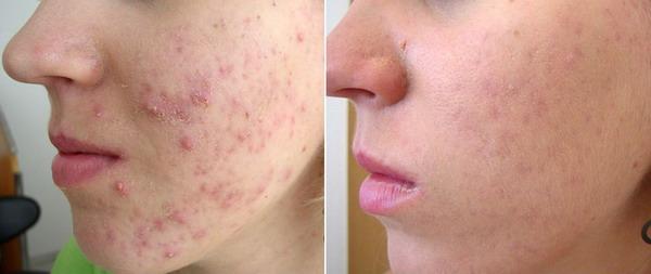 acné antes y despues