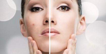 acné facial tratamiento