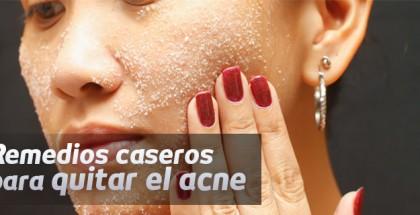 remedios quitar el acne