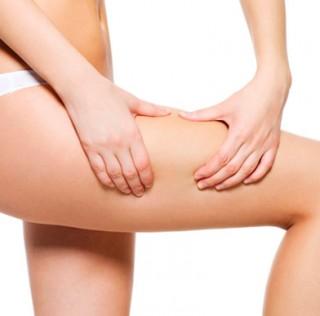 Los 10 mejores tratamientos para la celulitis