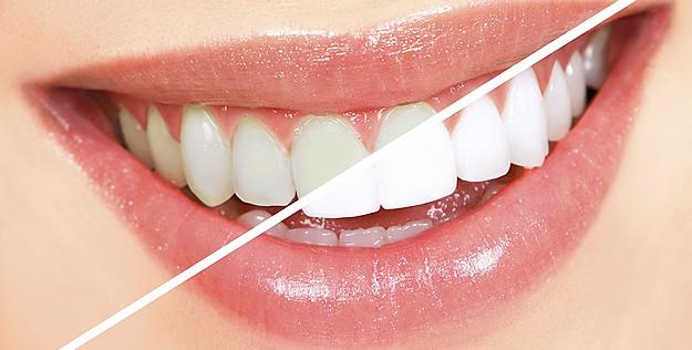 Sencillos tips para mantener una dentadura blanca