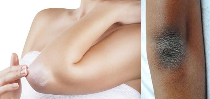 revisión masaje piel oscura