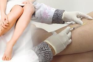Escleroterapia para eliminar varices