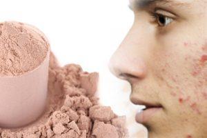 Acne y proteinas