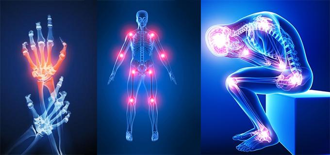 Remedios caseros para aliviar el dolor en las articulaciones
