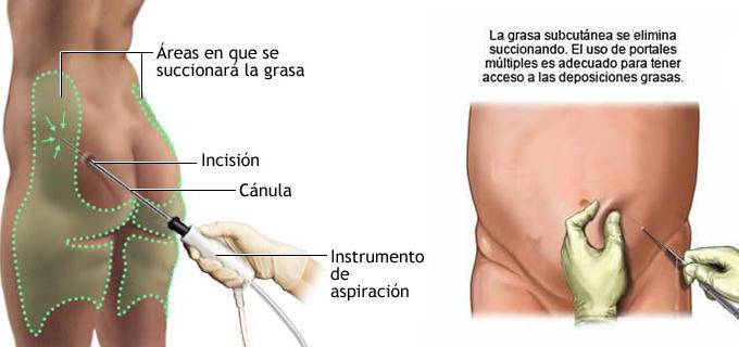 areas liposuccion