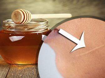 miel-para-cicatrices