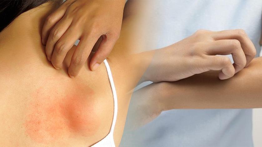 Trucos De Remedios Caseros Para Controlar Las Alergias De La Piel